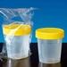 Urinepotjes met deksel 100ml steriel p.st. verpakt 10 stuks